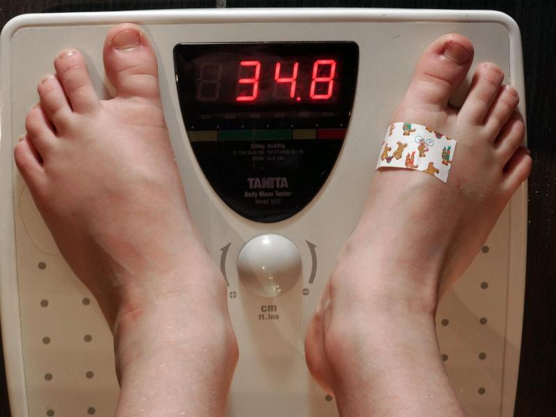 Bild zu Übergewicht bei Kindern