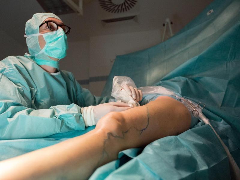 Bild zu Laserbehandlung von Krampfadern