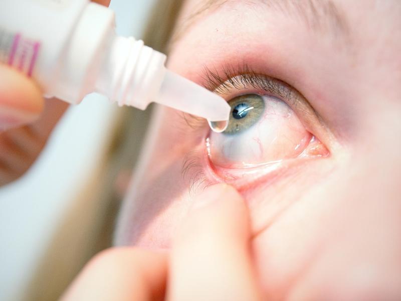 Bild zu Augentropfen gegen Bindehautentzündung