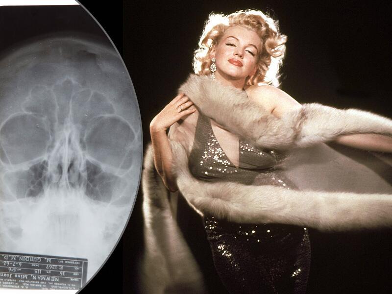 Bild zu Marilyn Monroe und eine Röntgenaufnahme von ihrem Gesicht.