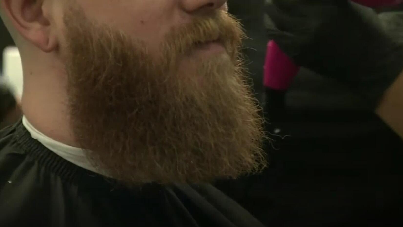 Bild zu Bart