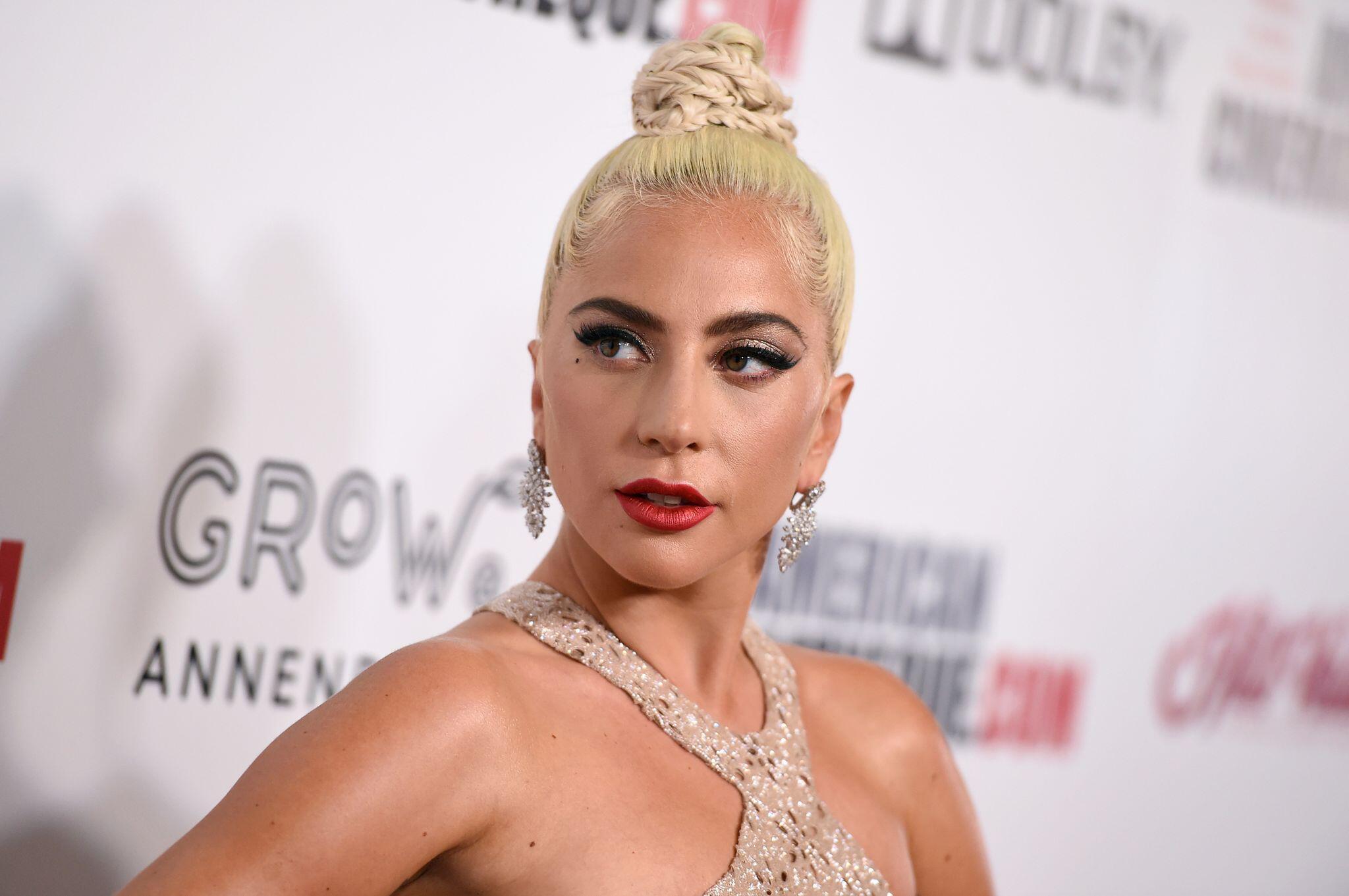 Bild zu Fünf Festnahmen nach Diebstahl von Lady Gagas Hunden