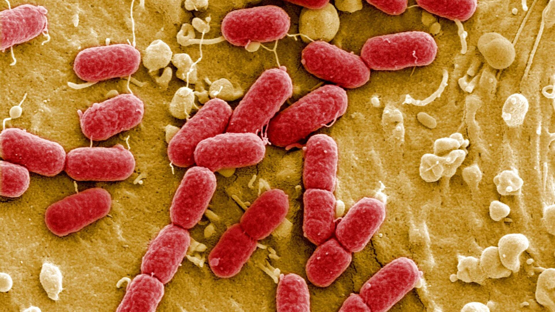 Bild zu E.Colibakterien