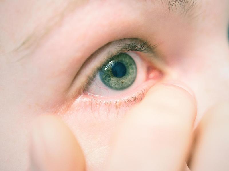 Bild zu Rotes Auge