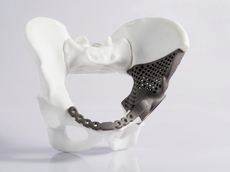 Bild zu Hüftimplantat aus dem 3D-Drucker