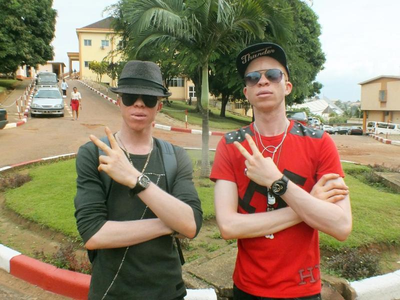 Bild zu Albino-Rapper