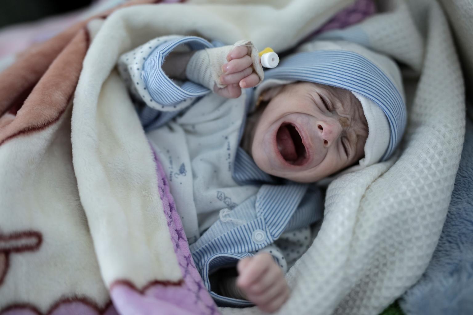 Bild zu Jemen, Mangelernährung, Neugeborenes