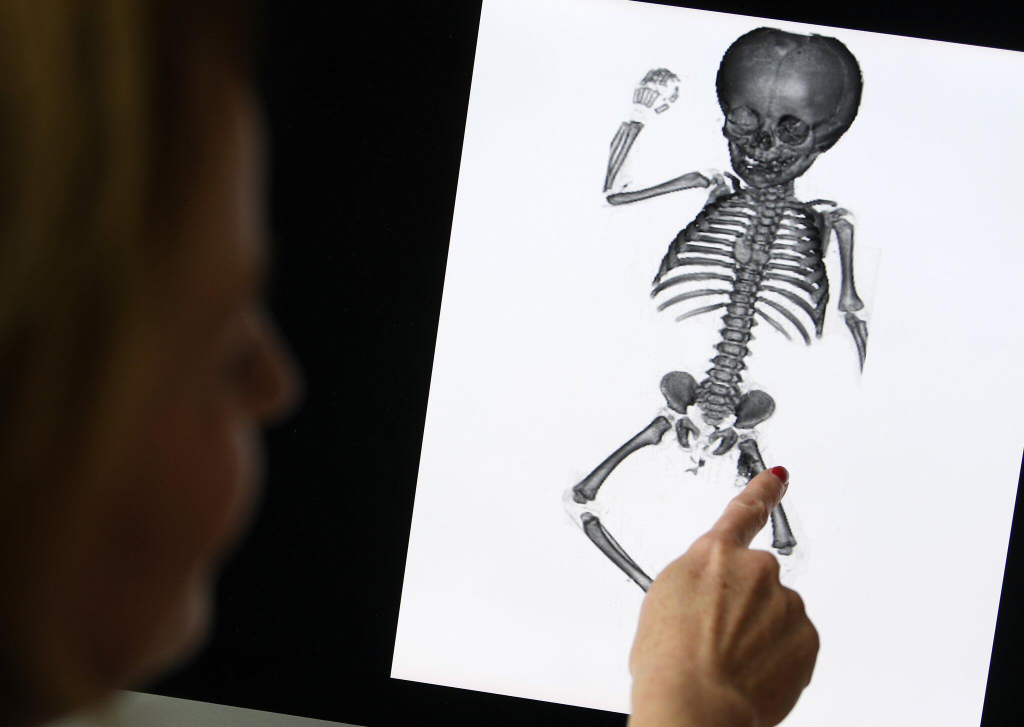 Letzte Ruhe für vergessene Kinder aus Anatomie | WEB.DE