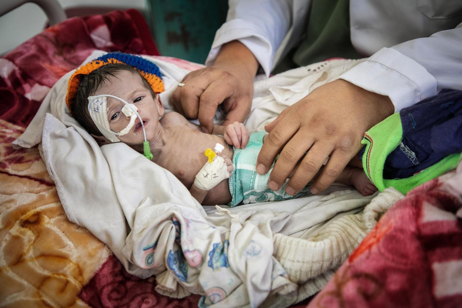 Bild zu Jemen, Mangelernährung, Krankenhaus, Krieg, Kind
