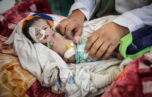 Jemen, Mangelernährung, Krankenhaus, Krieg, Kind
