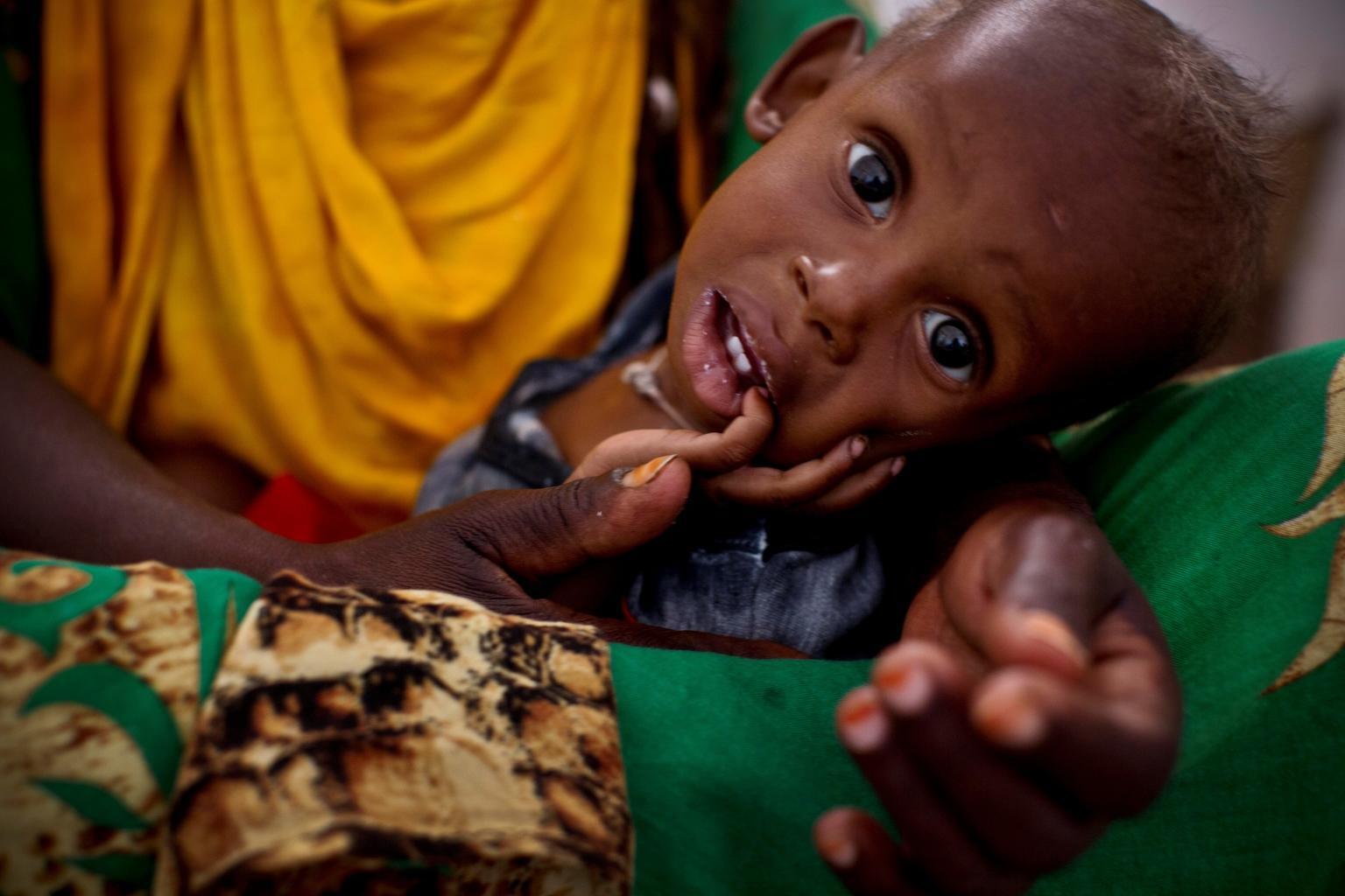 Bild zu Somalia, Hunger