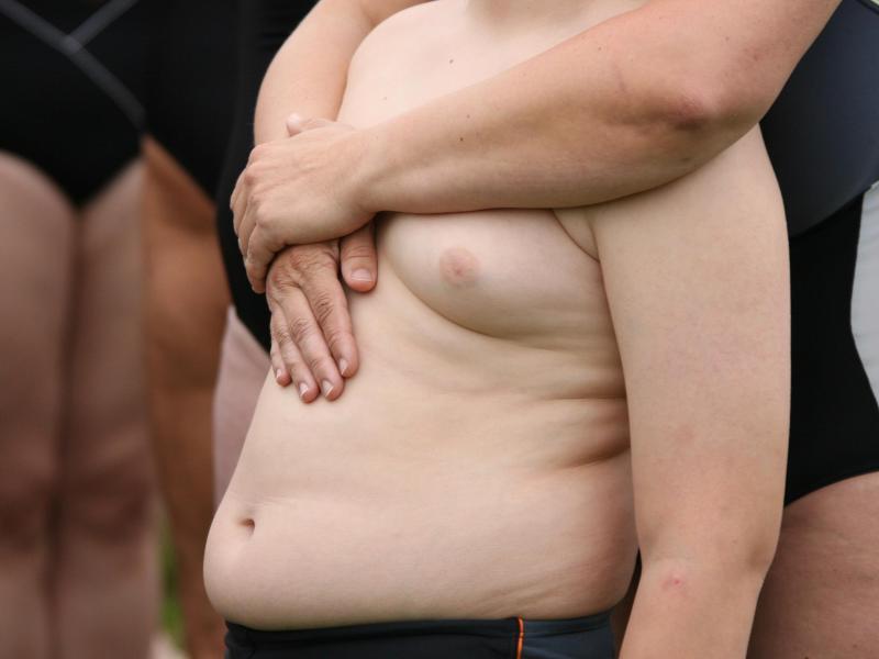 Bild zu Übergewichtiges Kind