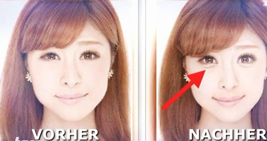 Bild zu Südkorea, Beauty, Trend, Augenringe
