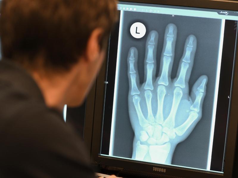 Bild zu Hand im Röntgenbild