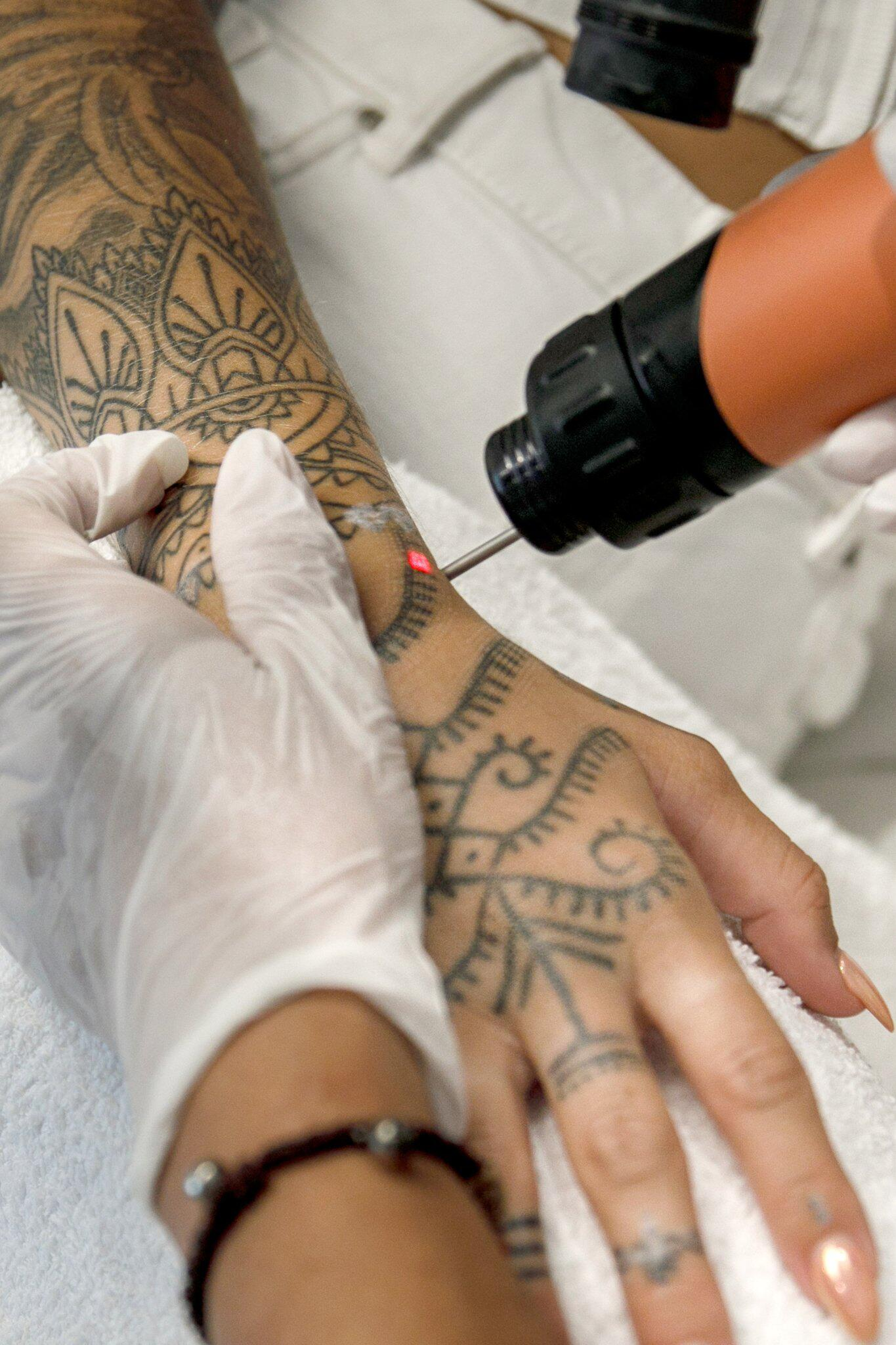 Bild zu Tattoo removal soon only by the doctor