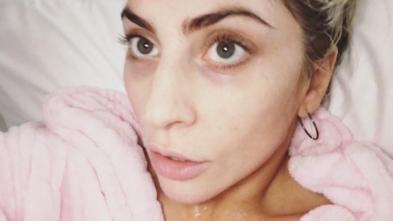 Bild zu Diese Stars zeigen sich ohne Make-Up