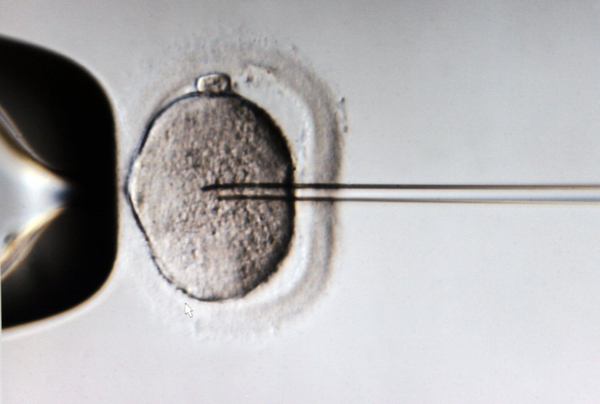 Bild zu In vitro fertilization