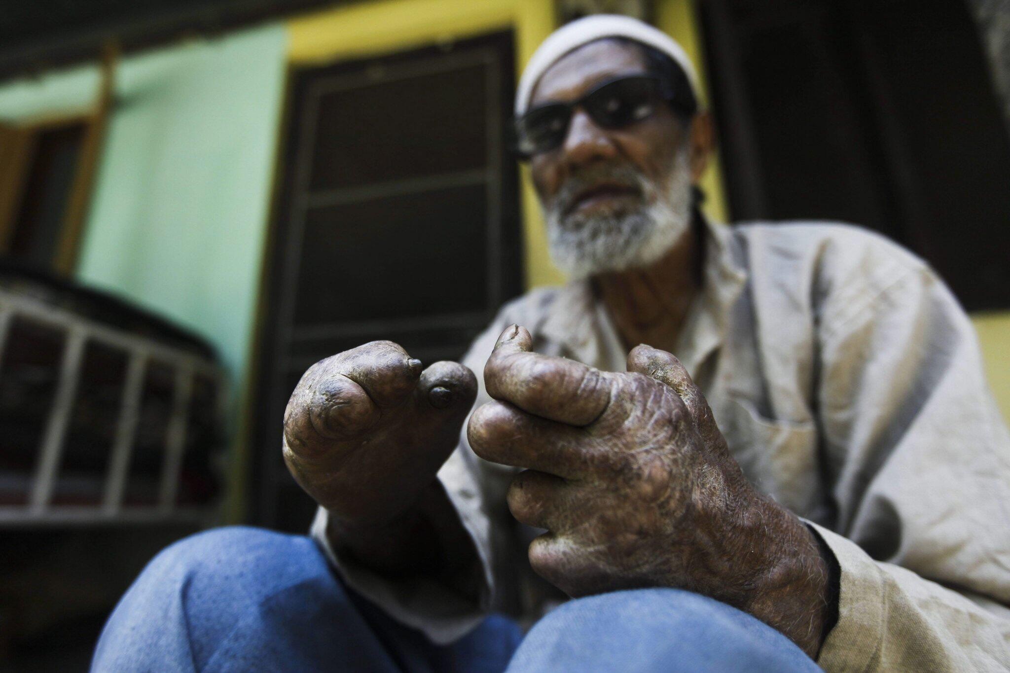 Bild zu Lepra in Indien