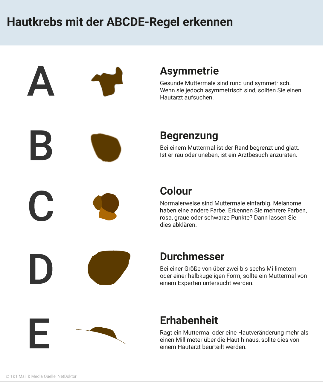 Bild zu Hautkrebs mit der ABCDE-Regel erkennen