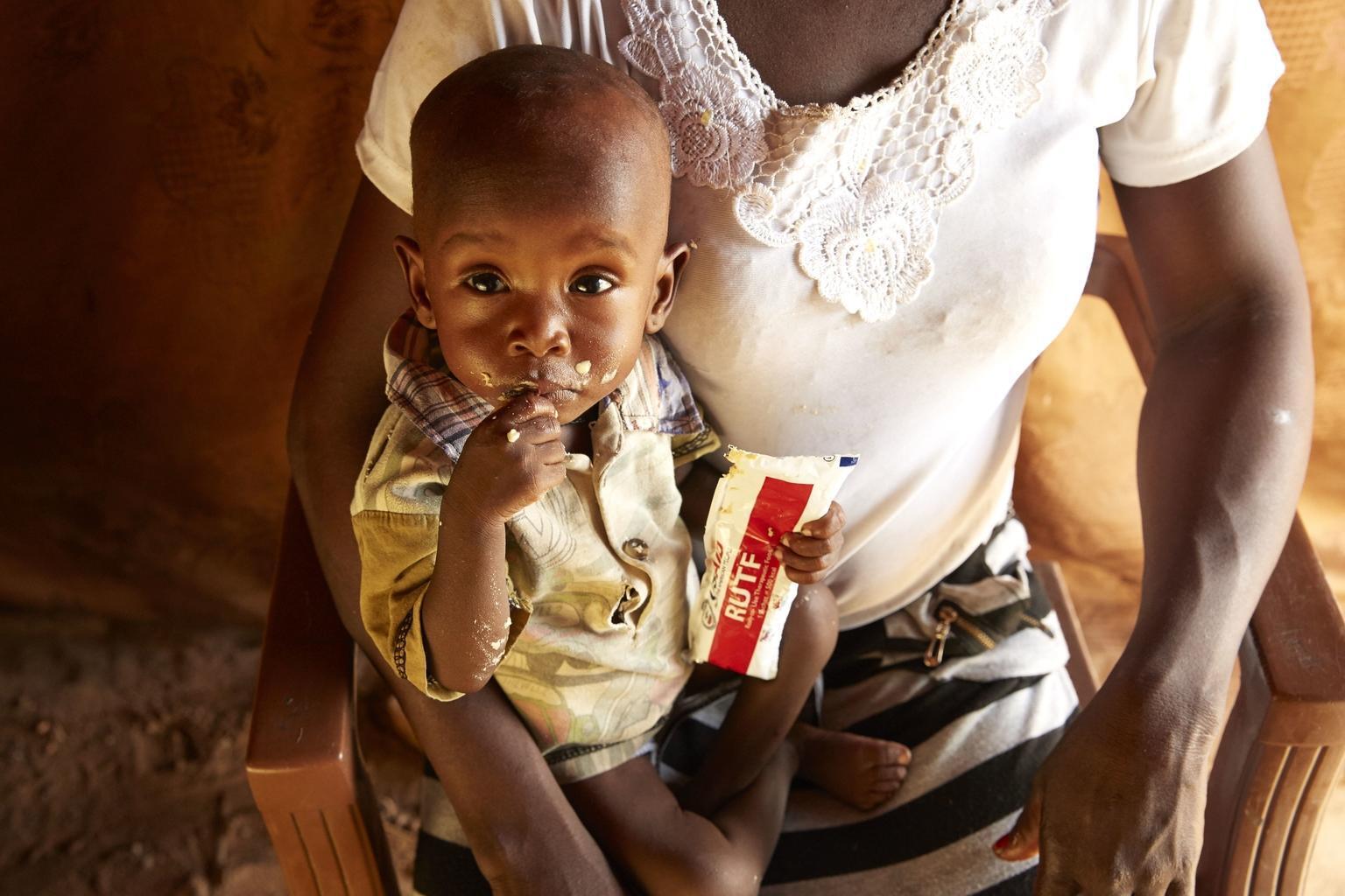 Bild zu Mangelernährung, Südsudan