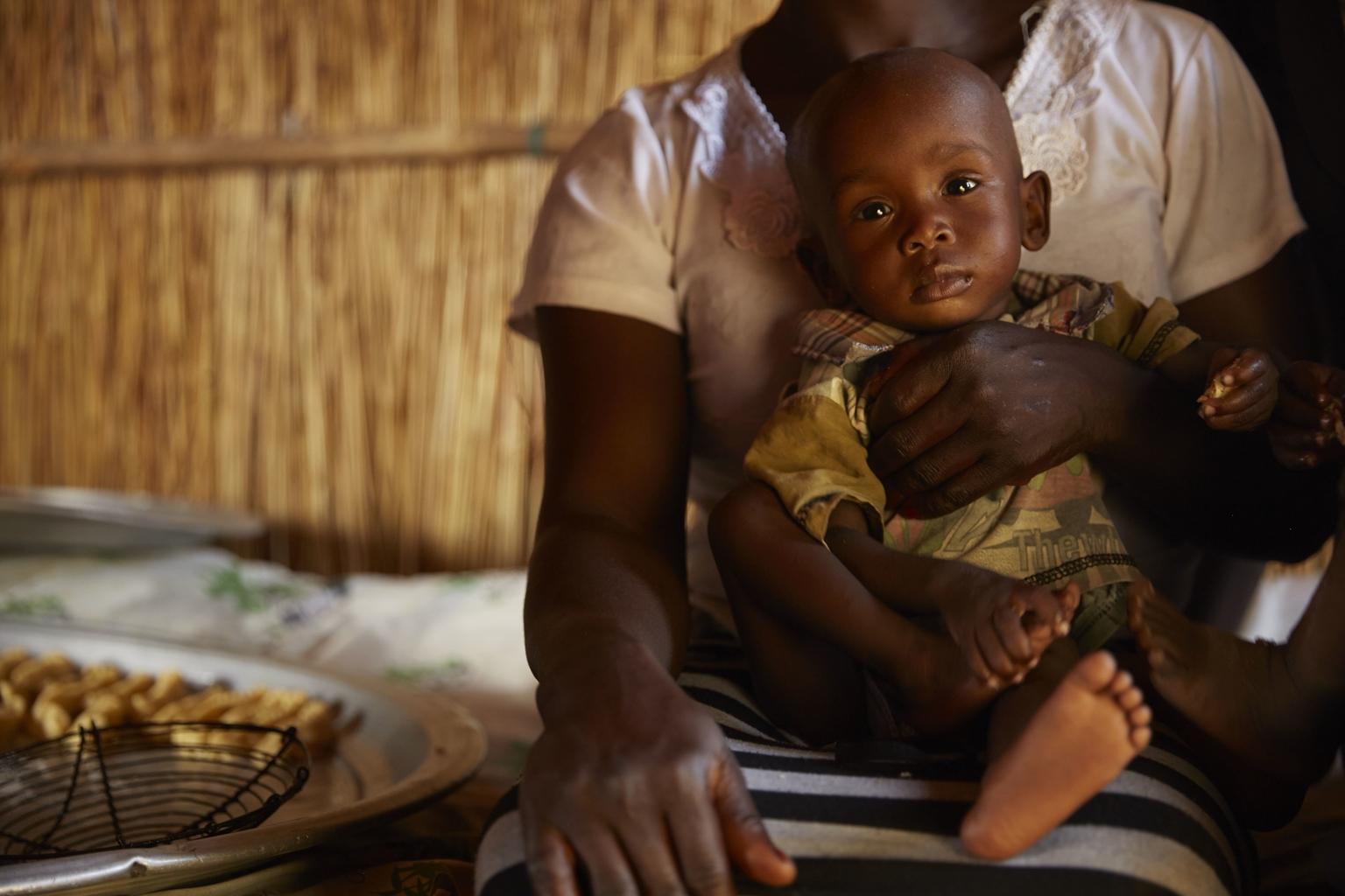 Bild zu Südsudan mangelernährtes Kind