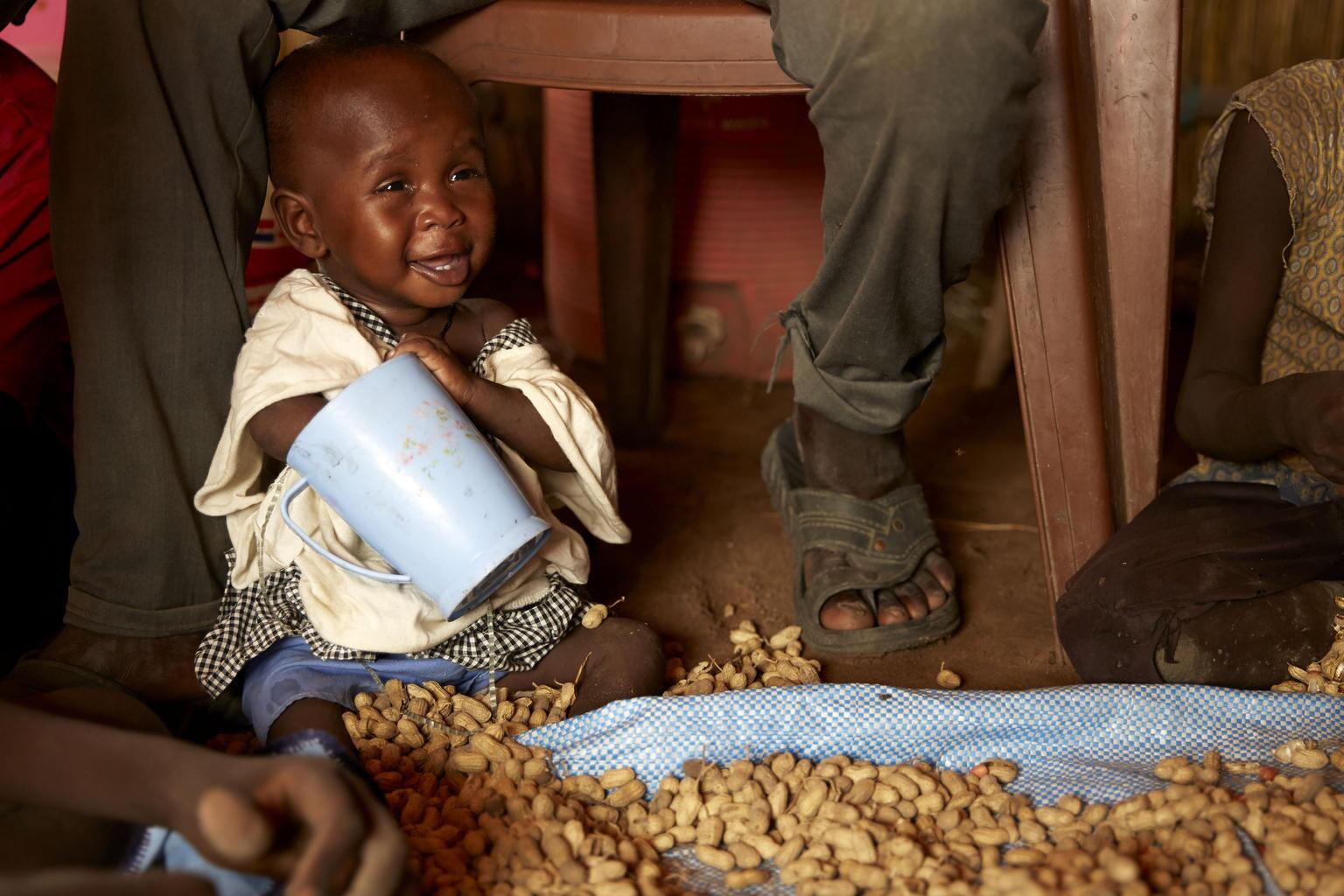 Bild zu Behandlung gegen Mangelernährung