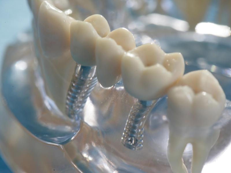 Bild zu Zahnimplantate in einem Modell