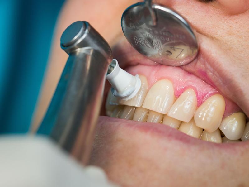 Bild zu Professionelle Zahnreinigung