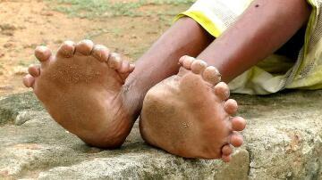 Bild zu Rekordverdächtig: Frau hat 12 Finger und 20 Zehen