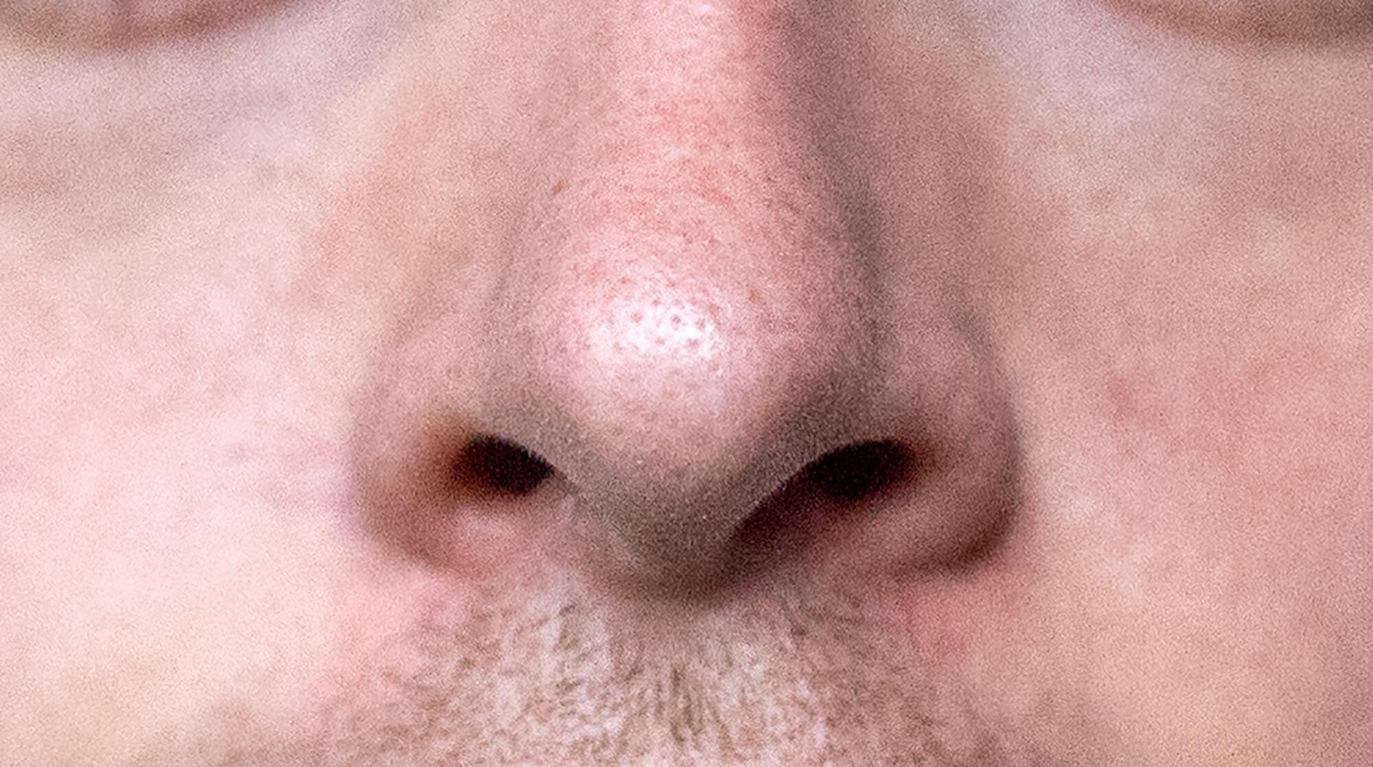 Bild zu Nasen